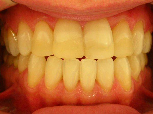 dente-amarelado-600x450